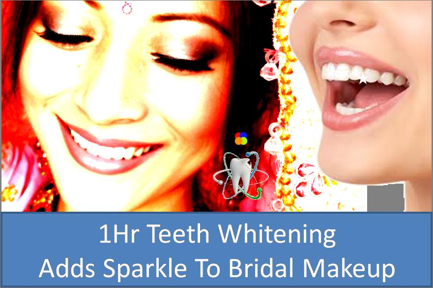 Laser Teeth Whitening At Dental Clinics In Mumbai