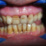 Direct Laminate Veneers at Dental Clinic Mumbai