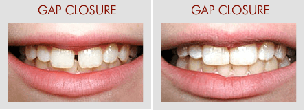 Gap Closure And Missing Tooth Replacement
