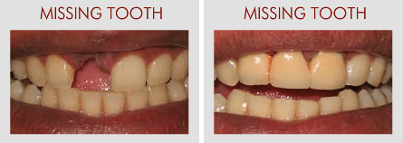 Missing Tooth Replacement at Om Dental Clinic Khar