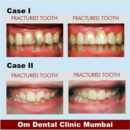 Dental care in Mumbai for fractured tooth