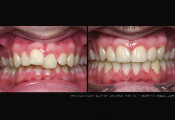 photo_of_teeth_before_and_after_braces