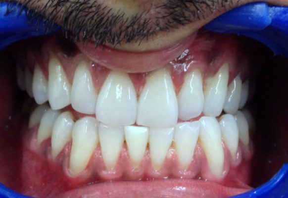 After Teeth Whitening – Dentist in Juhu