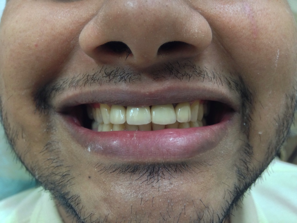 Smile Improvement by Dentists Near Bandra