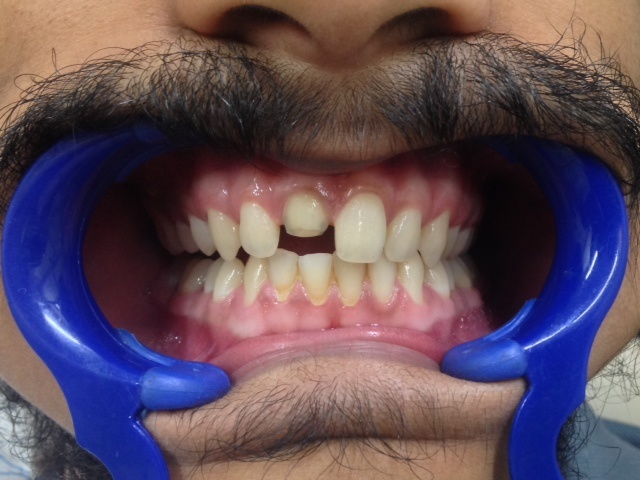 Anterior Central Discolored Tooth