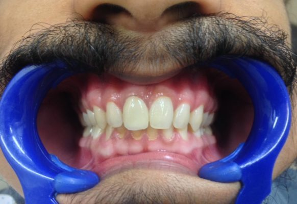 Treatment and 3M Lava Zirconia Crown for aesthetics