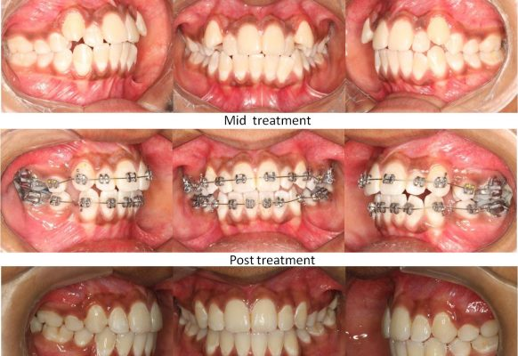 braces-om-dental-mumbai