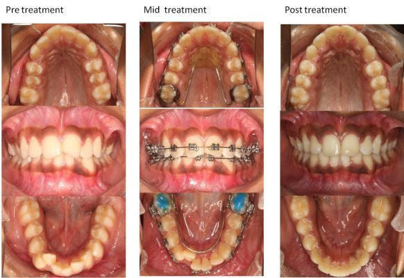 treatment-procedure-om-dental-mumbai