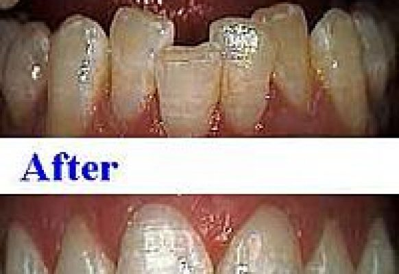crooked-teeth-lower-jaw-pain