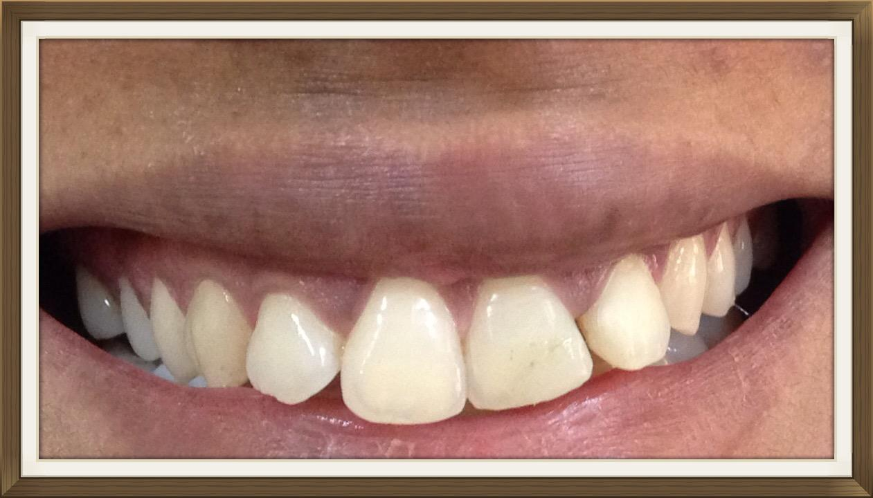 smile-design-mumbai-teeth