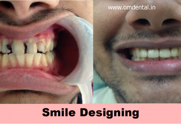 smile-designing-mumbai-india