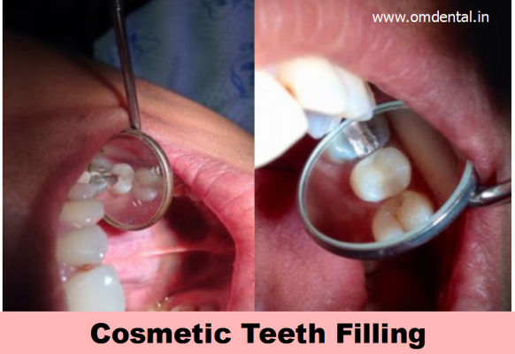 cosmetic-teeth-filling-mumbai-india