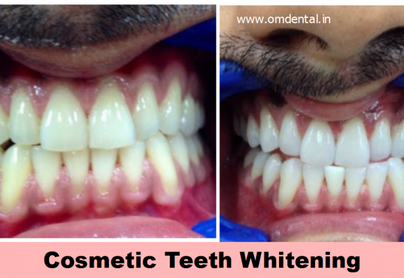 cosmetic-teeth-whitening-mumbai-india