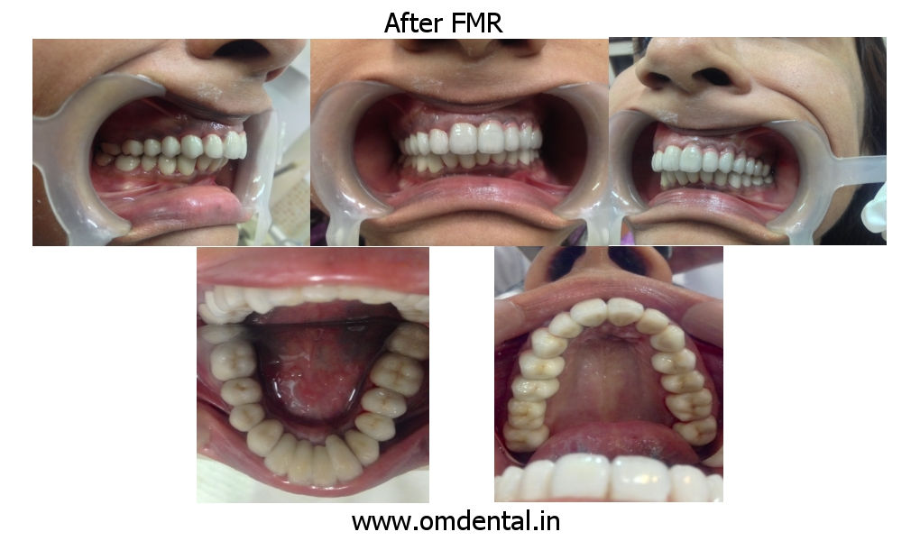 After Full Mouth Reconstruction Pics