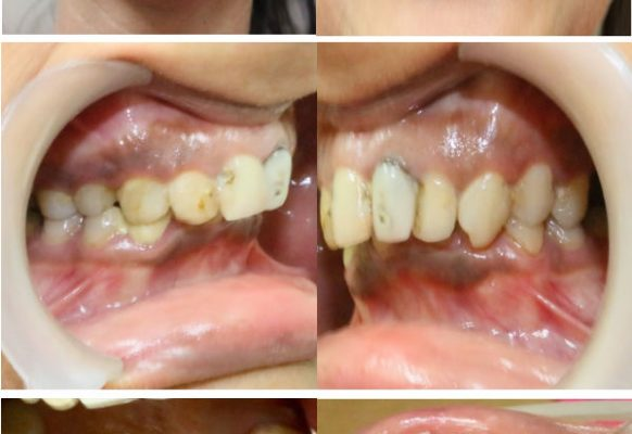 Full Mouth Reconstruction – Before FMR