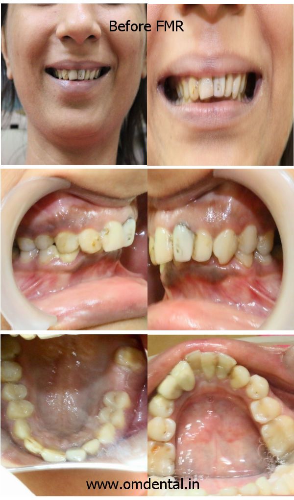 Full Mouth Reconstruction - Before FMR Pics