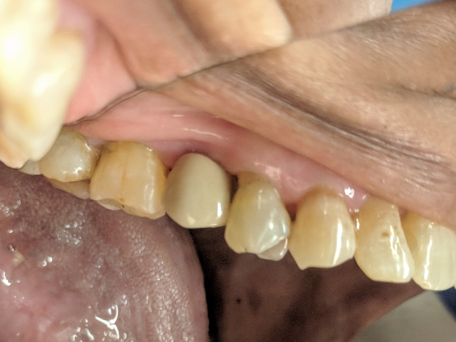 ceramic-crowns-tooth-implants-mumbai