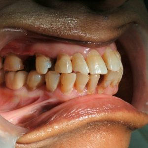 teeth gap filling by leading dentist in Mumbai