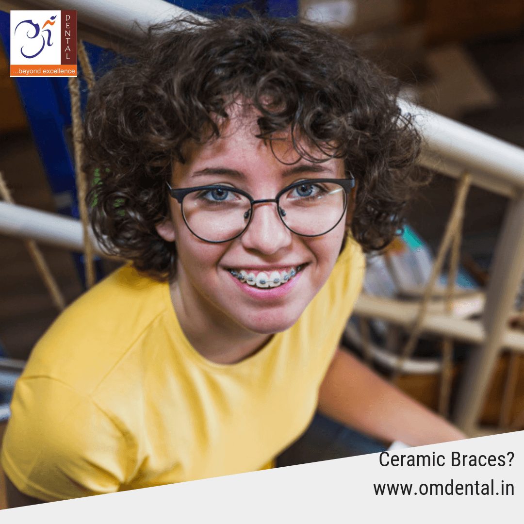 ceramic-braces-cost-mumbai-india