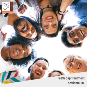 teeth-gap-treatment-in-mumbai