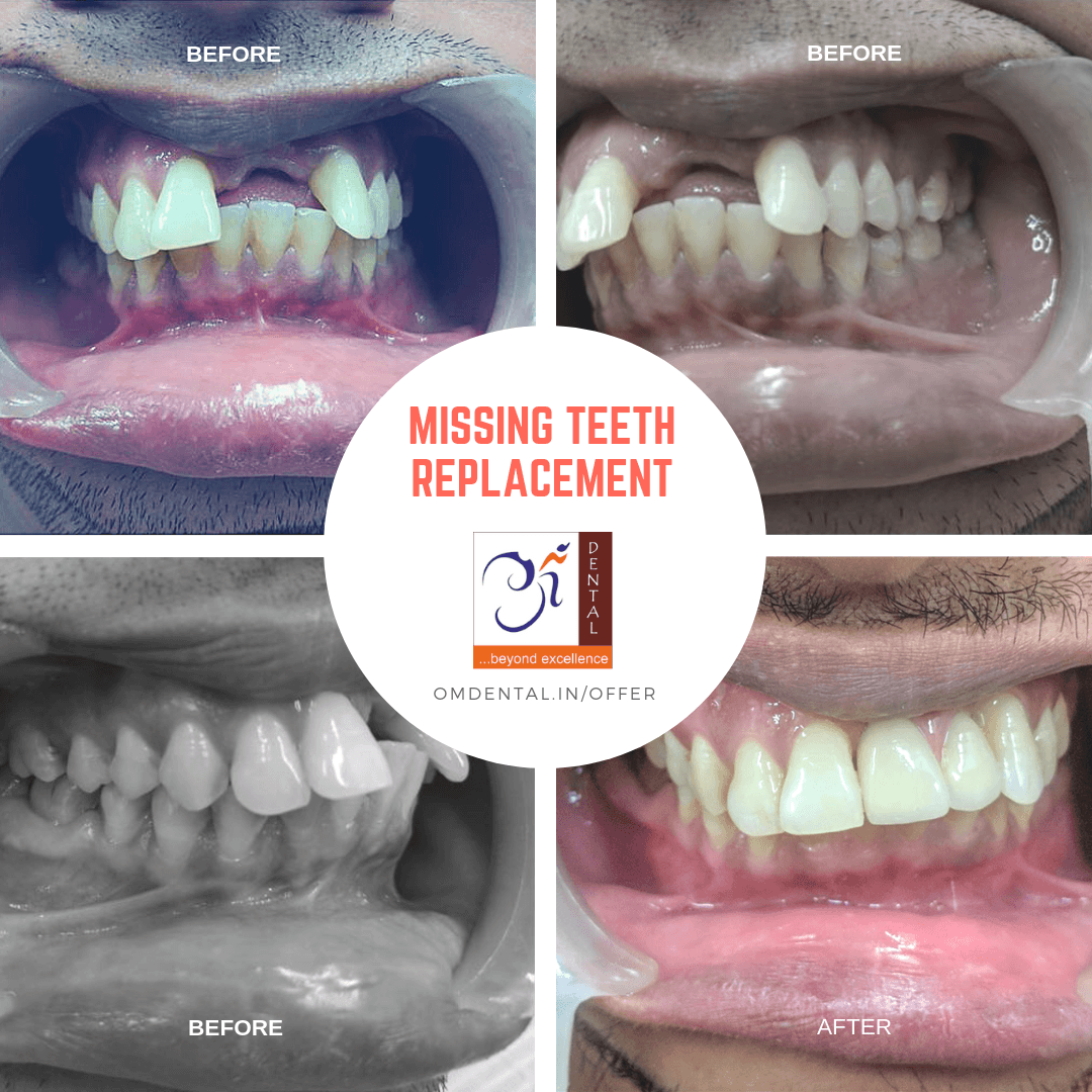 dentist-mumbai-missing-anterior-teeth-gap-treatment-final-prosthesis-fb